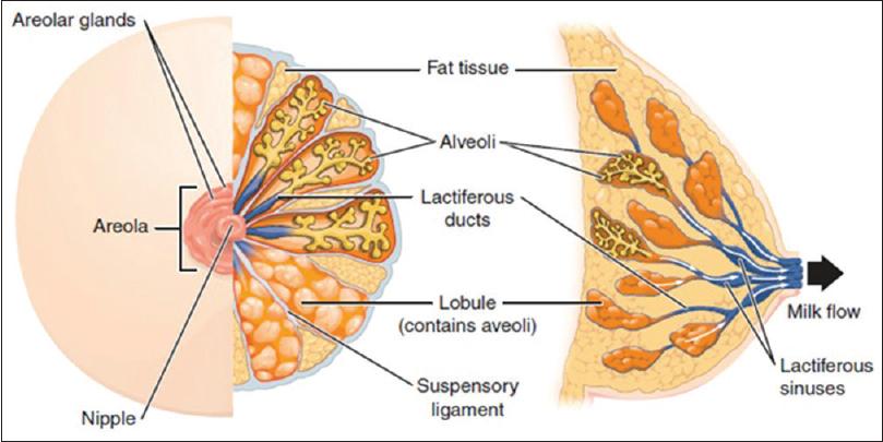 intraductal papilloma duct ectasia